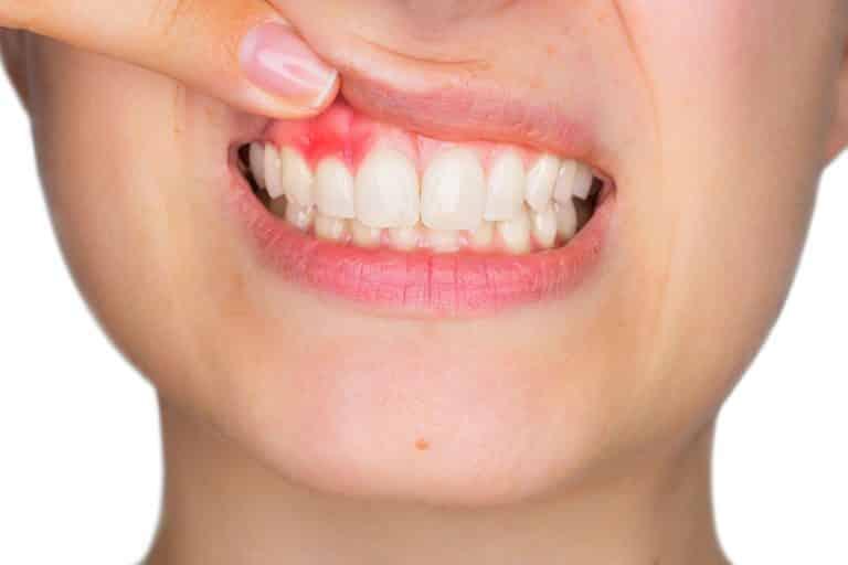 Déchaussement dentaire : causes, symptômes, conséquences et remèdes