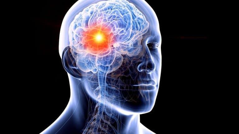 Tumeurs au Cerveau : types, symptômes, chance de vie, métastase, dépistage et opération ?